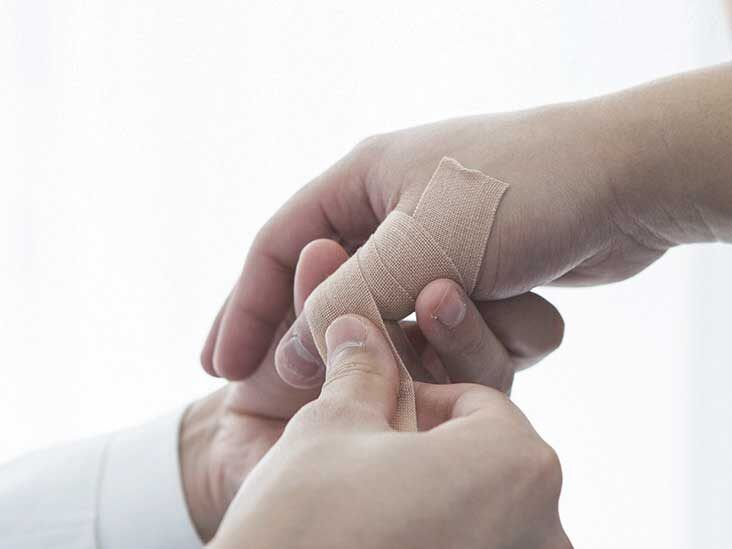 Sprained Thumb: Treatment, Recovery, Symptoms, and More